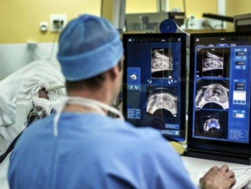 Cancer de la prostate : un traitement plus efficace et avec moins d'effets secondaires