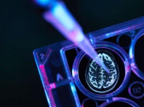"""10 % des diagnostics d'Alzheimer sont erronés"""