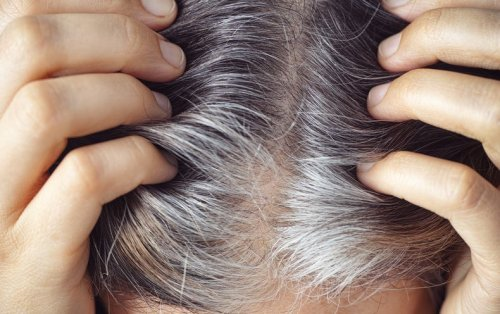 Gray Hair Can Return to Its Original Color—and Stress Is Involved, of Course