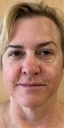 Functional Medicine skin care Atlanta - Functional skin spa