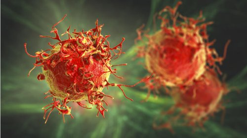 ALX Oncology gets dosing underway in Phase 1/2 evorpacept leukemia study