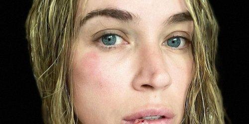 Teddi Mellencamp Shares a Bruised Selfie After a Vertigo-Related Fainting Spell