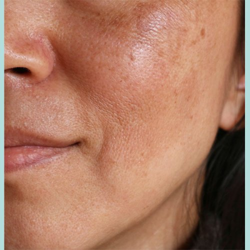 4 Super Effective Ingredients Dermatologists Swear By To Make Age Spots And Hyperpigmentation Disappear