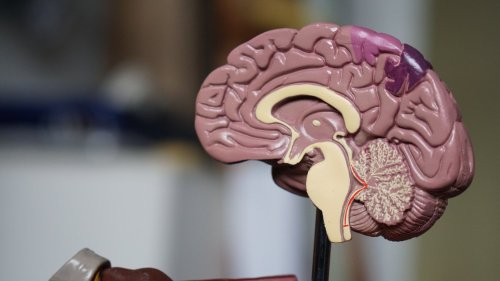 Researchers say specific amino acid combo may protect against dementia