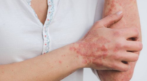 Intermittent fasting protocol found to reduce psoriasis after a few weeks