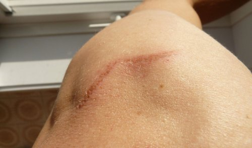 Researchers discover a way to make wounds heal without forming scar tissue
