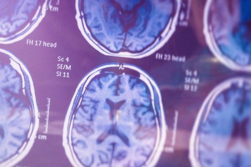 Why the Approval of That Alzheimer's Drug Is So Disturbing