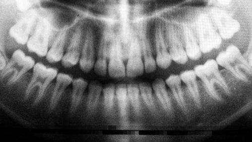 On sait enfin pourquoi les dents de sagesse ne poussent qu'à l'âge adulte