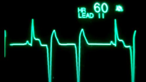Cliniquement morte pendant 45 minutes, une américaine ressuscite près de sa fille qui accouche