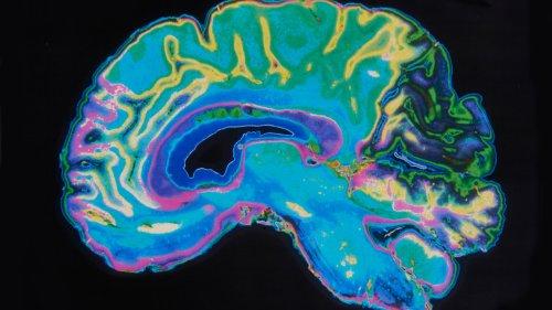 Alzheimer: RNA zeigt Risiko für Demenz an