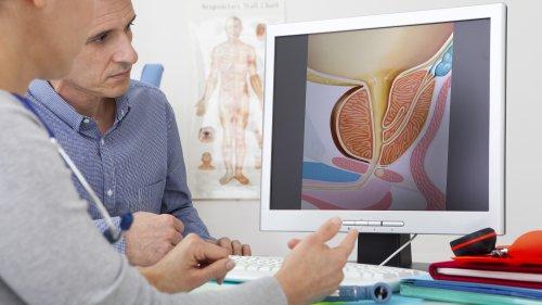 Besser Vorsorgen: Krebs erkennen mit dem Prostata-Check