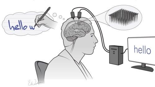 Experiment: Implantat lässt Gelähmten schreiben – mit der Kraft seiner Gedanken