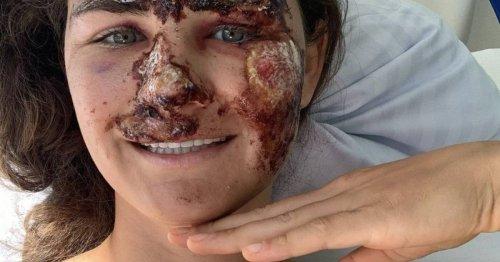 Ski Alpin: Alice Merryweather - linkes Knie ebenfalls zerstört