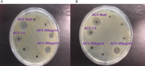 Antibacterial apple cider vinegar eradicates methicillin resistant Staphylococcus aureus and resistant Escherichia coli