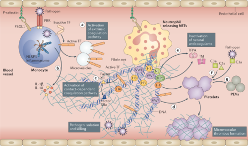 Endothelial dysfunction and immunothrombosis as key pathogenic mechanisms in COVID-19