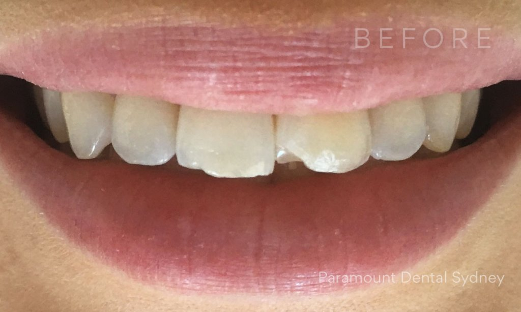 https://cakejune60.edublogs.org/2021/06/23/advice-regarding-how-to-buy-your-teeth-whiter/ - cover