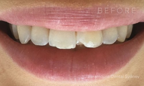 Advice Regarding How To Buy Your Teeth Whiter – The Life of Brooks 362