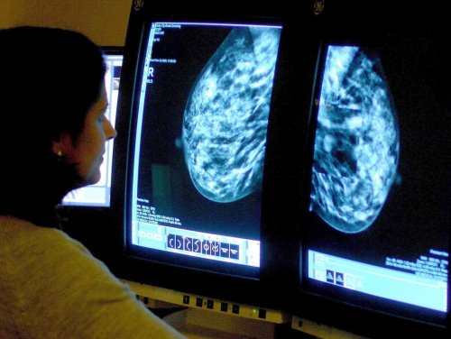 Breast cancer drug 'found to reduce risk of disease progression'
