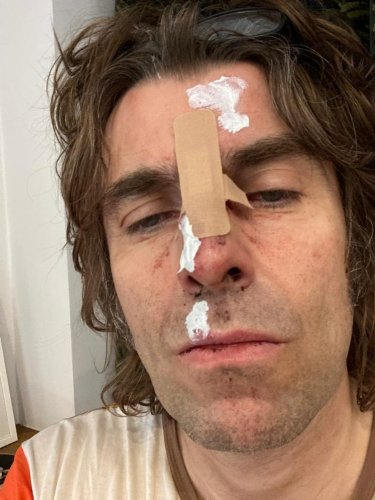 Liam Gallagher injured 'falling from a helicopter'
