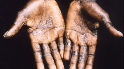 More than 200 people being tracked for possible monkeypox exposure