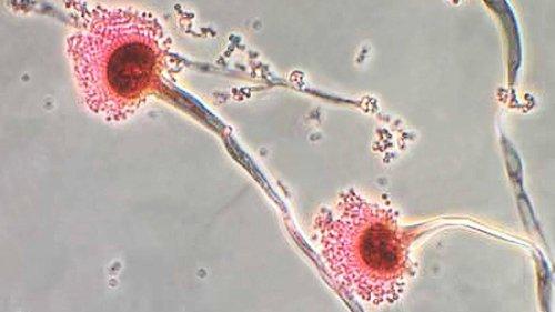 Schimmelpilz-Infektion: Für viele ungefährlich, für Corona-Patienten eine tödliche Gefahr