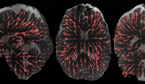 Cutting edge medical tech pioneered in New Zealand: New imaging method allows brain to be seen as never before
