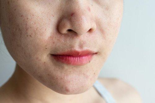 Was hilft wirklich bei großen Poren?