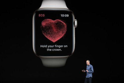 Apple's Watch isn't the first with an EKG reader but it will matter to more consumers