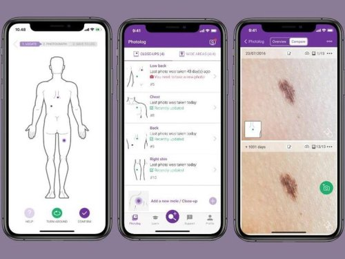 New app helps prevent skin cancer using AI and ML