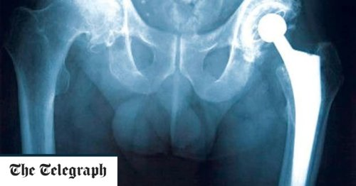 Hip fracture screening could save 'thousands' of devastating injuries