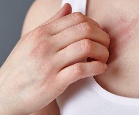 Coronavirus patients suffering 'nasty red rash' before Covid-19 symptoms