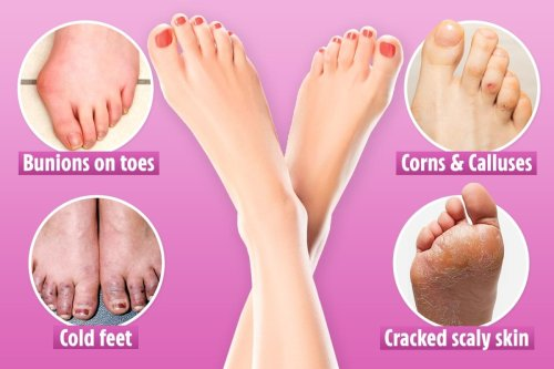 Looking for early signs of diabetes or heart disease? Check your feet