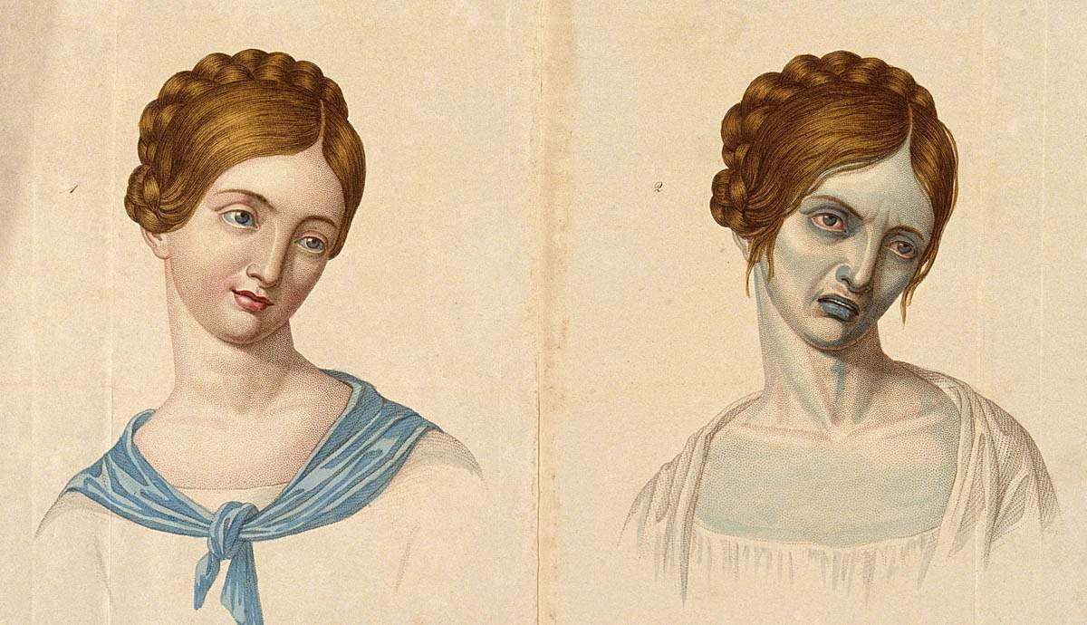 Romanticizing Death: Art in the Age of Tuberculosis