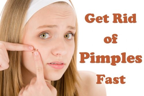 Top 11 Home Remedies To Get Rid of Pimples Fast