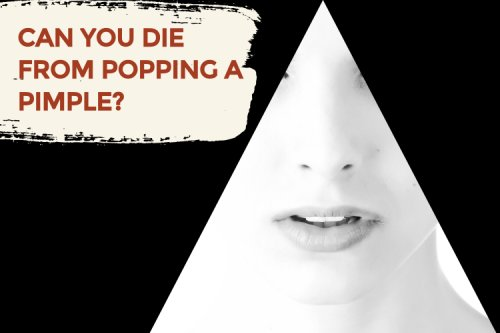 Can you die from popping a pimple?