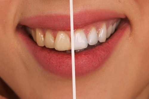 Why Is It Important to See a Dentist? The Top Reasons and Benefits - The Complete Herbal Guide