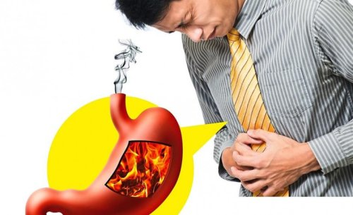 Get Rid of Acid Reflux Naturally with Yoga