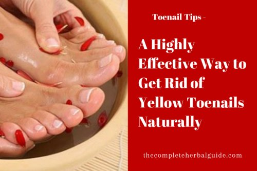 Try One of These 4 Home Remedies for Toenail Fungus