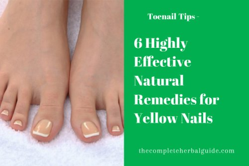6 Ways to Clear Up Yellow Toenails