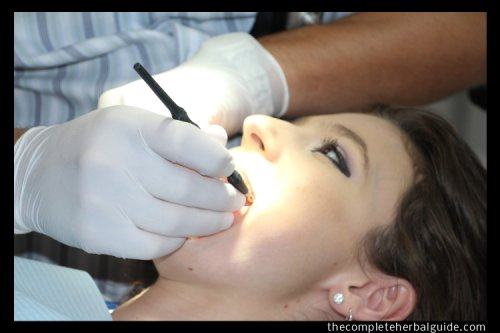 7 Tips on How to Treat Gum Disease - The Complete Herbal Guide