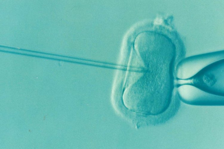 Signs of Infertility and Possible Reasons