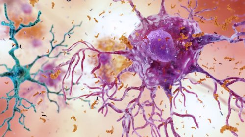 A 50-Year-Old Drug Might Find a New Life Treating Alzheimer's
