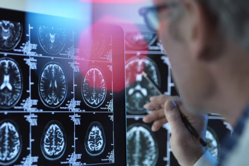 What Brain Experts Think About the Controversial New Alzheimer's Drug