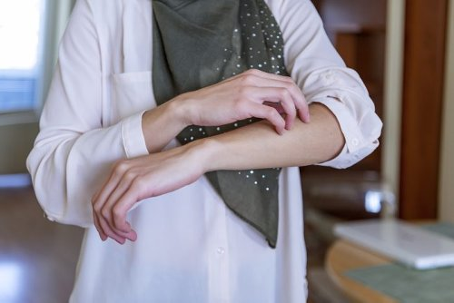 Eczema vs. Psoriasis: 13 Differences Doctors Need You to Know