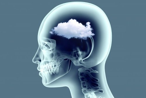 What Is Covid-19 Brain Fog—and How Do You Get Rid of It?