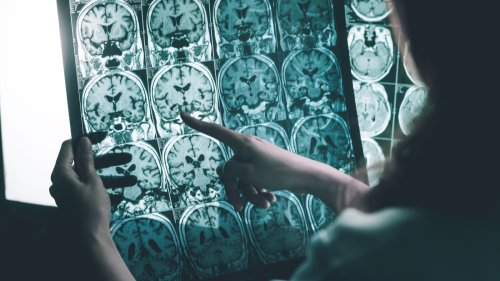 Scientists may have found a solution for Alzheimer's and Parkinson's disease