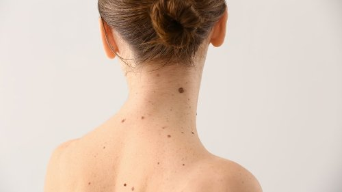 What It Really Means If You Have A Mole In One Of These Places