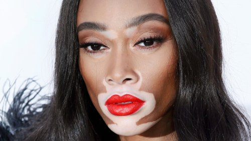 Winnie Harlow's Role Models Are Beyond Relatable