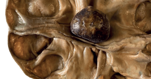 From Pot to Print: Using 3D Scanning and Printing to Bring Back Pathology Specimens