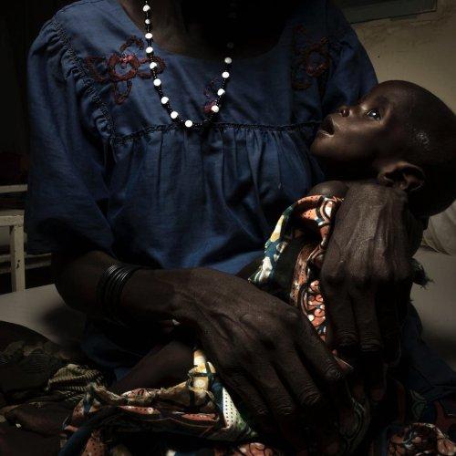 Josh Estey Captures Sahel Children's Fight for Survival With a Ricoh GR II